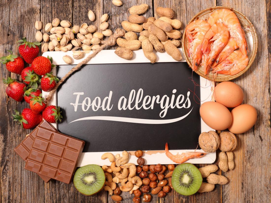 food-allergies-display